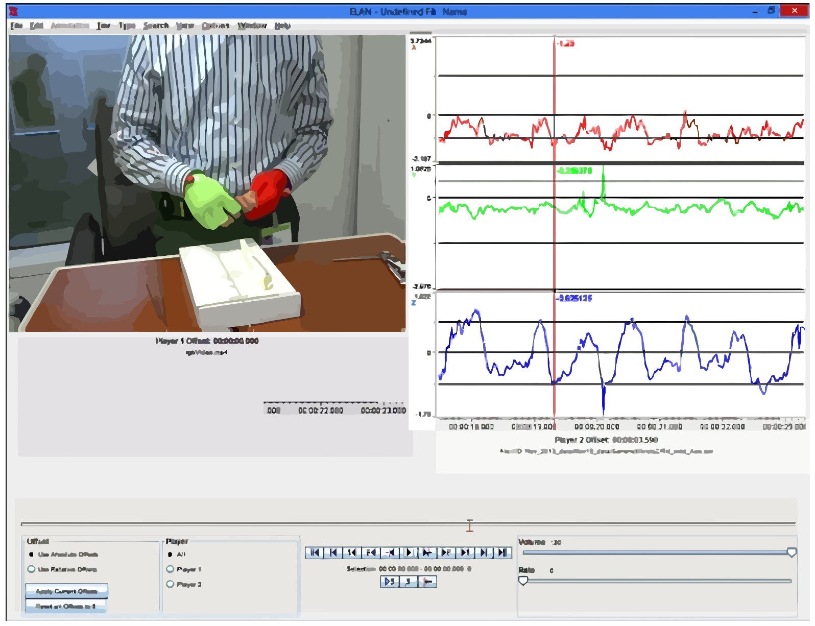 Video and Accelerometer-Based Motion Analysis for Automated Surgical Skills Assessment